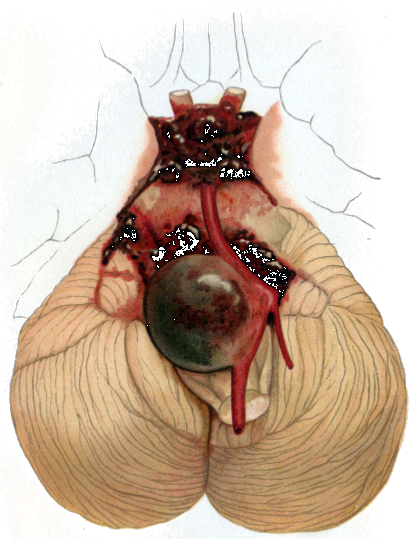 Aneurysma1_Cerebellar_aneurysm.png