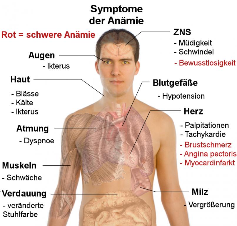 Anämie_Symptome_Symptome_der_Anämie.png