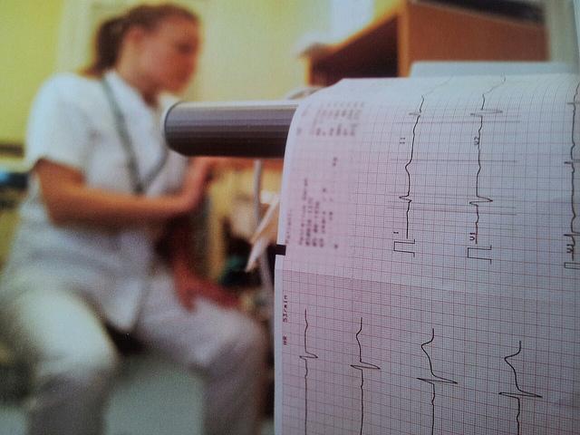 Aufzeichnung Herzfrequenz