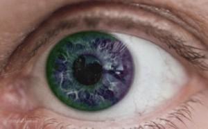 In der Regel ist die Iris eines Menschen nicht einfarbig, wenn auch diese Färbung übertrieben ist.