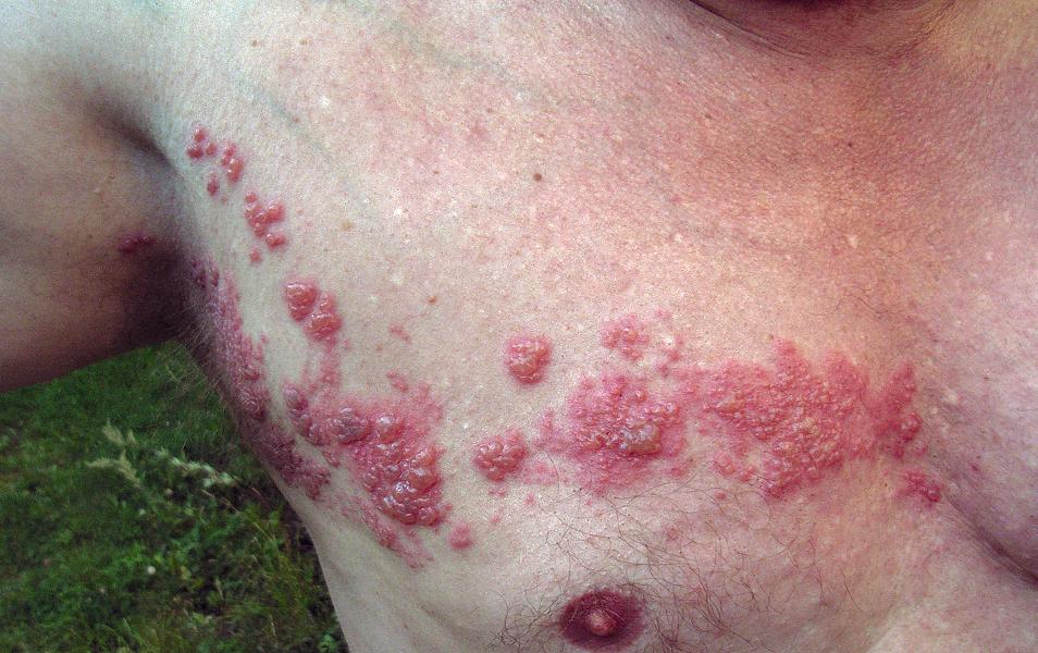 Bild: Herpes zoster (Gürtelrose) an typischer Lokalsation. Lizenz: CC BY 2.0