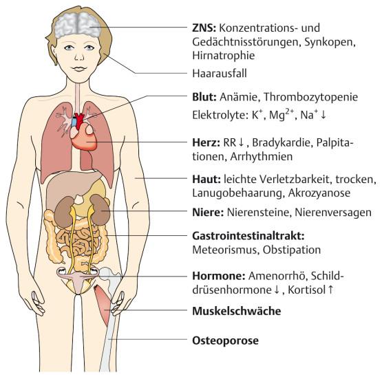 Folgen der Anorexia nervosa auf den Organismus; aus: Leucht, Förstl: Kurzlehrbuch Psychatrie und Psychotherapie, Thieme 2012