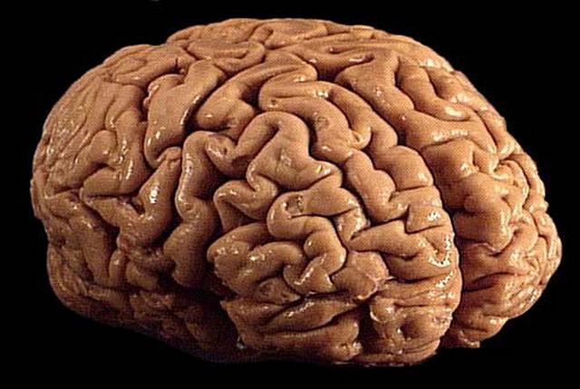 Basiswissen Neuroanatomie: Das Zwischenhirn
