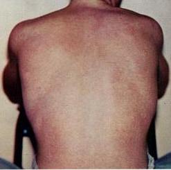 Dengue-Fieber-Ausschlag