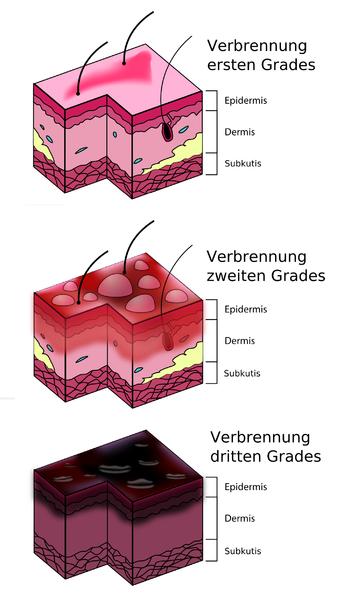 verbrennungsgraddiagramm