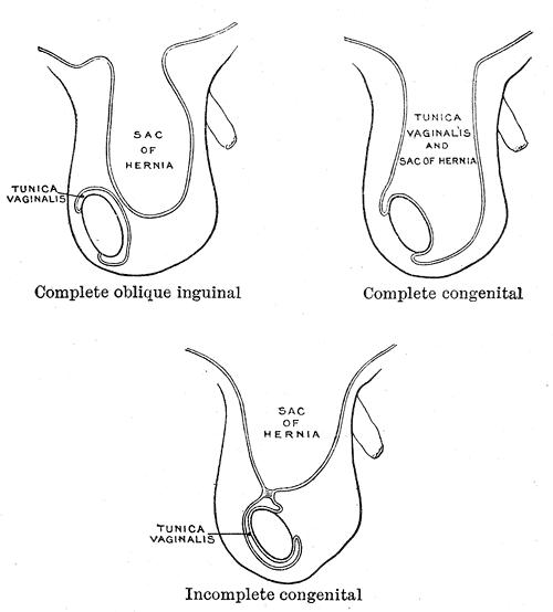 Gray-hernia