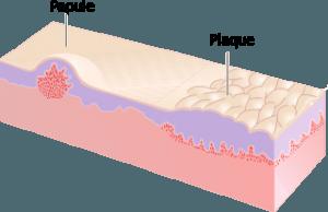 Papule und Plaque
