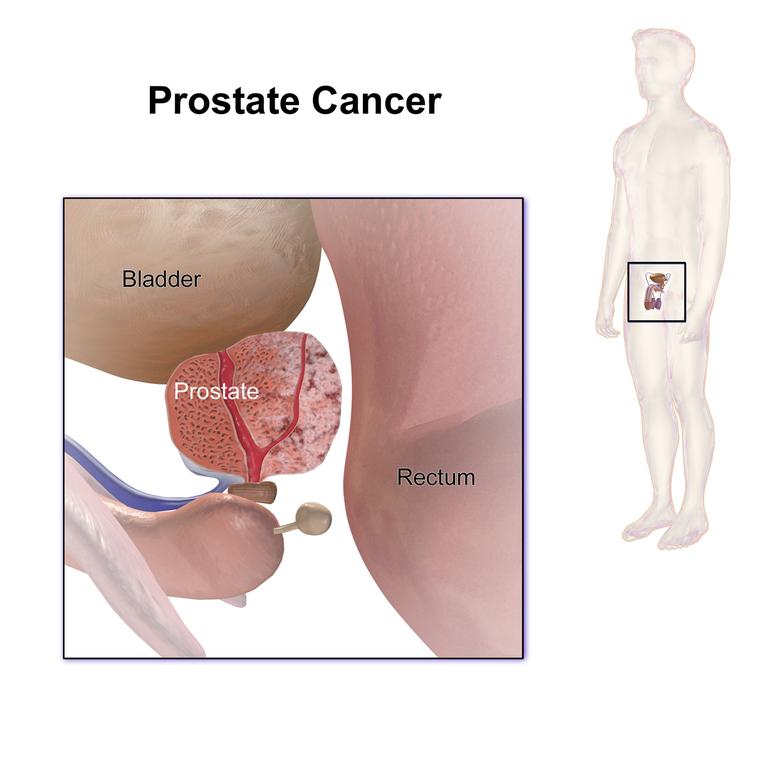 Prostatakarzinom Prostatakrebs