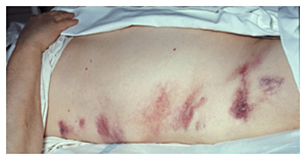 Grey-Turner-Zeichen Pankreatitis