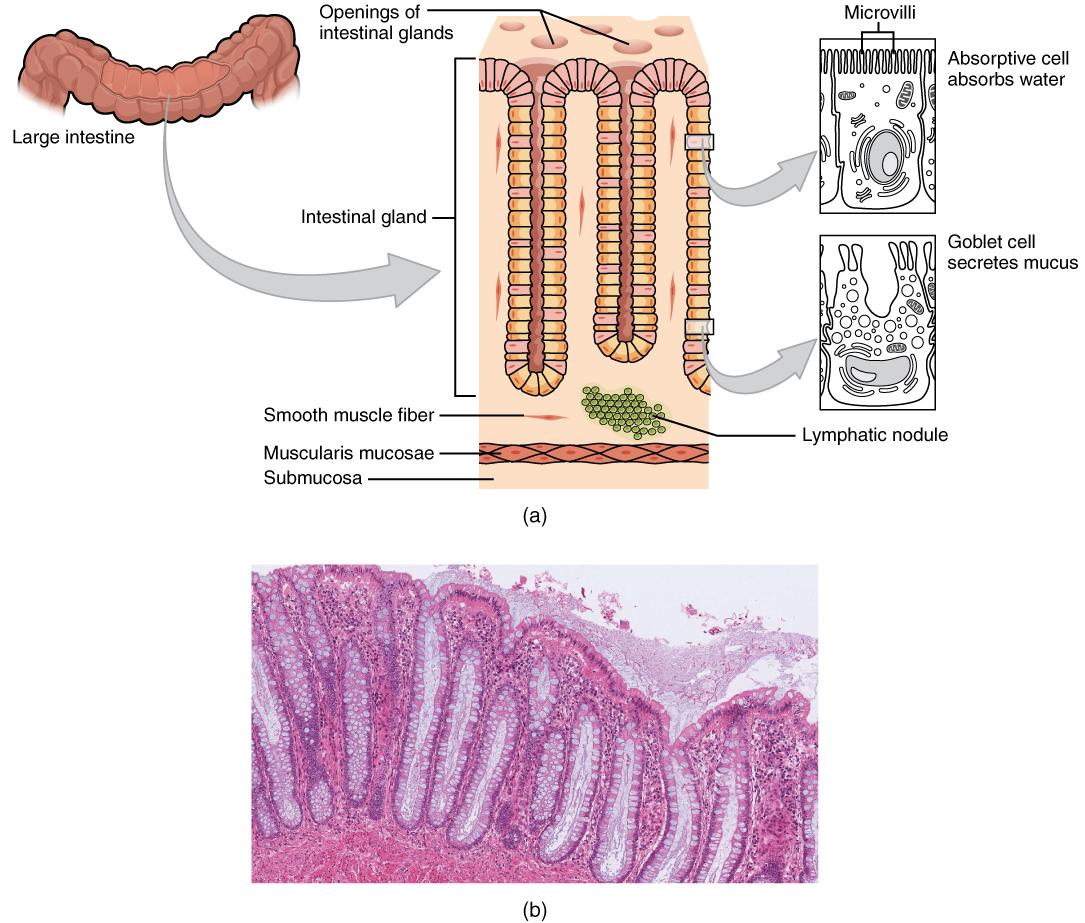 Dickdarm: Schematische Darstellung der Histologie und mikroskopische Abbildung