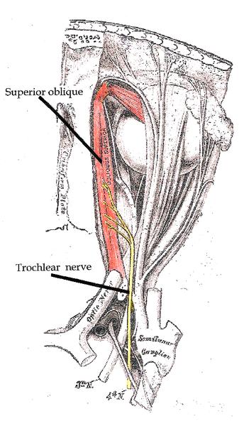 4. Hirnnerv (nervus trochlearis): Schematische Abbildung mit Beschriftung