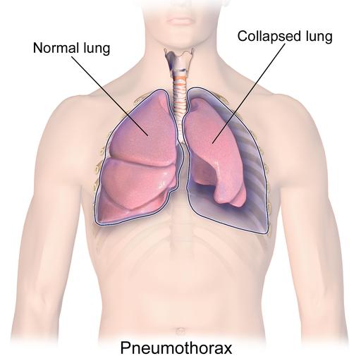 Lunge: Anatomie-Wissen zu Aufbau, Funktion & Krankheiten