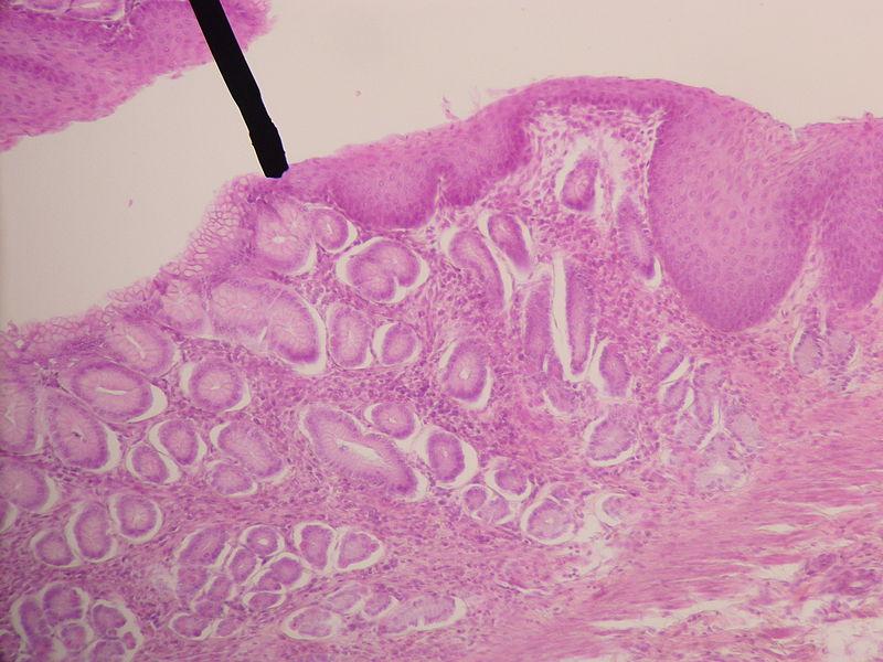 Mikroskopisches Bild: Übergang von Ösophagus- in Magenschleimhaut