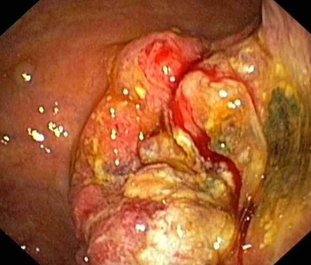 Magenkrebs im fortgeschrittenen Stadtium (endoskopisches Bild)
