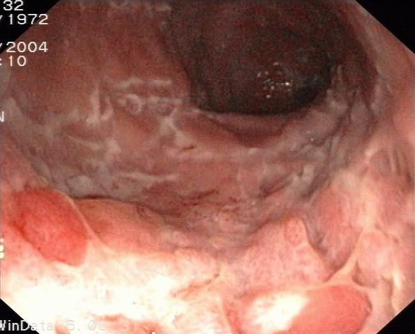 Endoskopie von Morbus Crohn