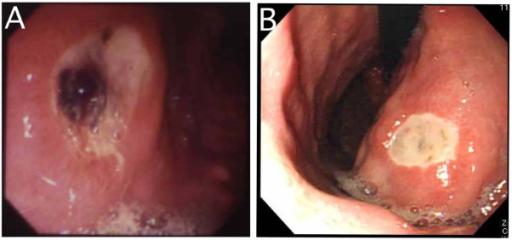 gastric ulcer (endoskopisches Bild)