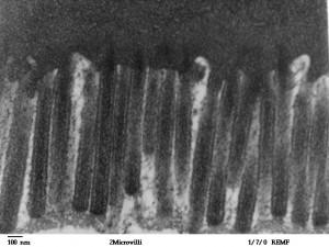 Elektronenmikroskopische Aufnahme der menschlichen Jejunum-Epithelzellen mit dicht gepackten Mikrovilli.