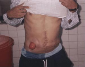 Acht Monate nach der zweiten Operation mit Quer-Kolostomie auf der rechten Seite