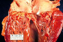 Sektionspräparat einer von Haemophilus parainfluenzae verursachten Endokarditis der Mitralklappe