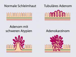 Schema der Adenom-Karzinom-Sequenz nach Vogelstein