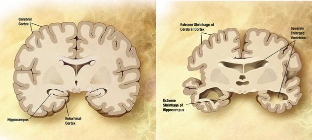 Links ein gesundes Gehirn, rechts das eines Alzheimererkrankten