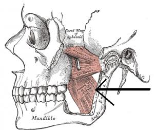 Abbildung des Lage des M. pterygoideus medialis