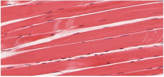 Quergestreifte Muskulatur aus Histologie