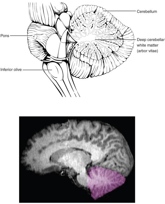 das ist eine abbildung des cerebellums