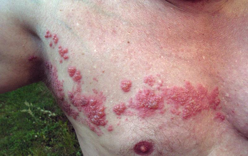 """Bild: """"Herpes zoster"""" von fisle. Lizenz: CC BY-SA 3.0"""