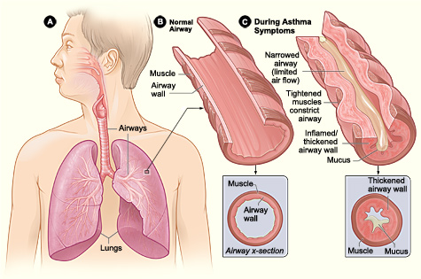 Asthma-attacke-illustration