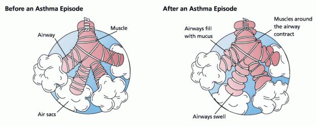 Asthma-vor-und-nach-anfall