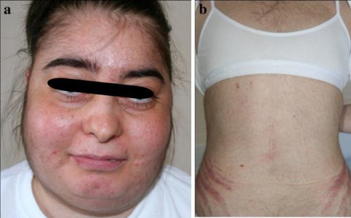 Cushing-Syndrom bei einer Frau
