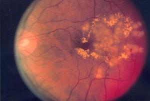 Diabetische Retinopathie nach fokaler Laserbehandlung