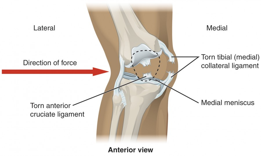 labeled diagram of a Knee Injury
