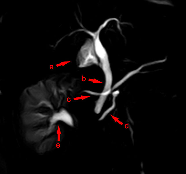 MRCP Pankreas divisum
