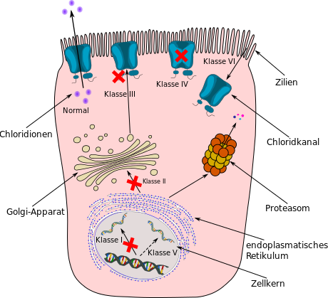 Schematische Darstellung der 6 verschiedenen Mutationsklassen bei Mukoviszidose