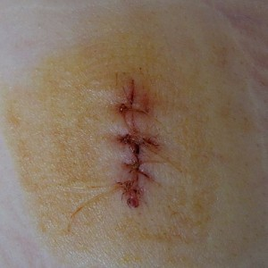 Image of stitches