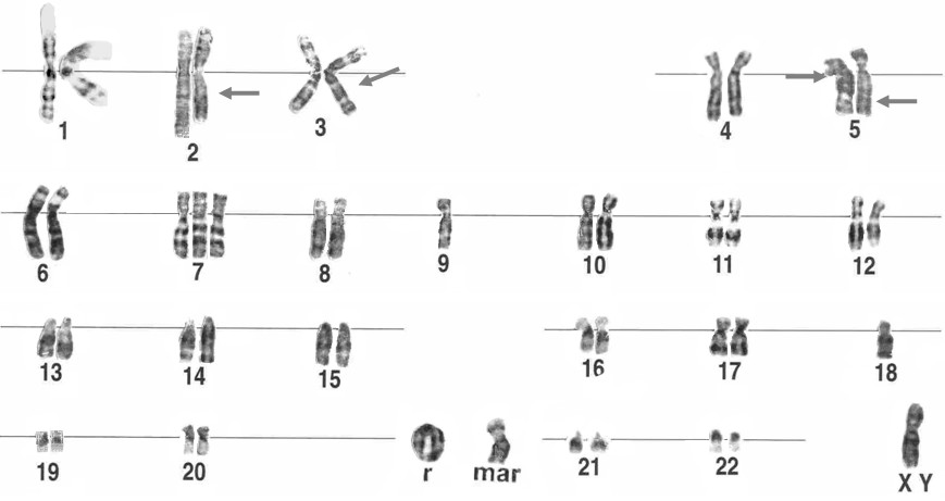 ring chromosome
