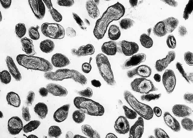 das ist ein mikroskopiebild von coxiella burnetii