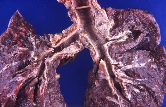 diese abbildung zeigt eine lunge mit inhalationstrauma