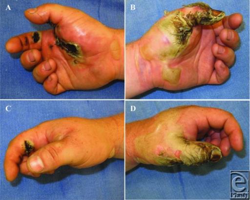 dieses bild zeigt eine hand mit einer durch strom verursachten brandwunde
