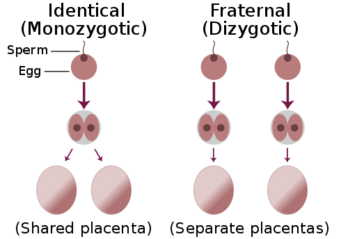 monozygotisch und dizygotische Zwillinge Unterschied