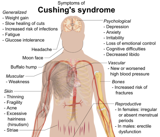 symptome des Cushing Syndroms