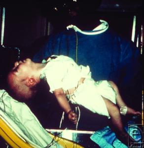 6 Wochen alter Säugling mit Botulismus