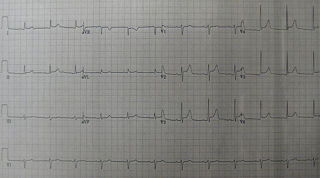 EKG Perikarditis