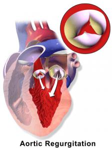 Aortenklappeninsuffizienz