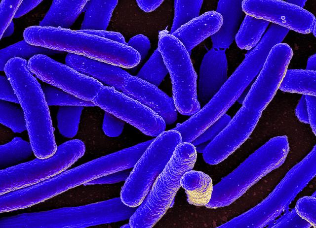 Kolorierte elektronenmikroskopische Aufnahme von Escherichia coli