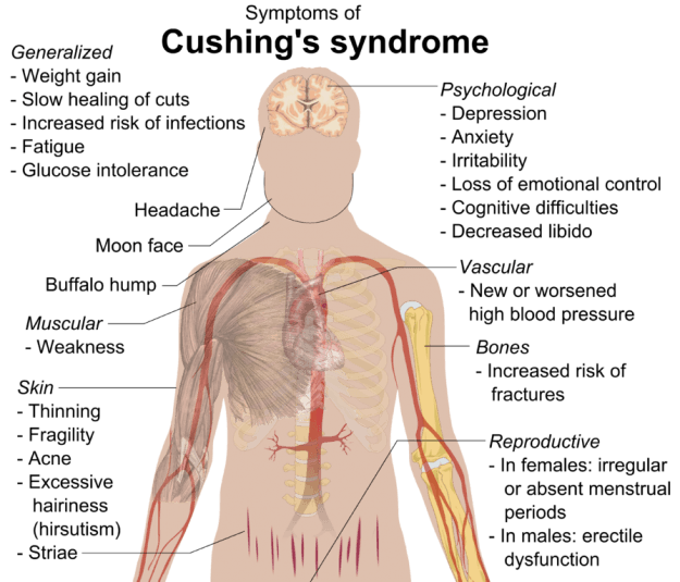 Cushing's-syndrome-symptome