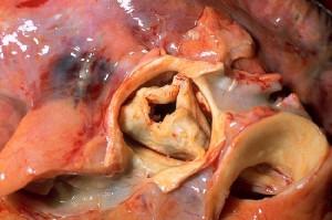 Durch rheumatisches Fieber bedingte erworbene Aortenstenose