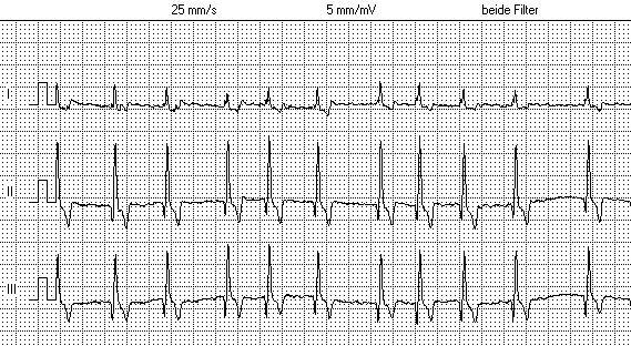 EKG Vergleich zwischen Vorhofflimmern und Sinusrhythmus